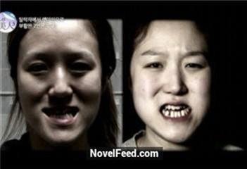 雙胞胎姊妹長太醜到30歲還被人嘲笑!難過的她們決定花百萬整容!沒想到整成這個樣...