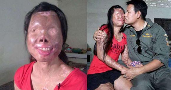 太嚇人了!這女人麵目全非,可是她的老公卻不離不棄,理由竟然是……膽小勿進!