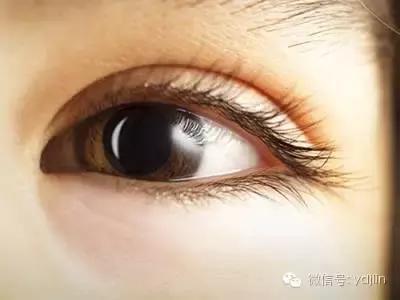 教你輕松祛眼袋去眼袋的最好方法,幫你解決掉惱人黑眼圈