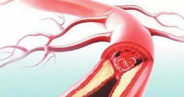 清理血管的特效菜,40歲後一定要多吃!再不多吃一點血管就要堵住了!