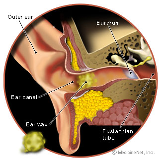 ear_wax