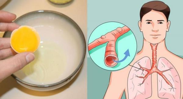 雞蛋配上「它」一招就拯救「久咳」,300倍有效又簡單!可惜很多人都不知道!